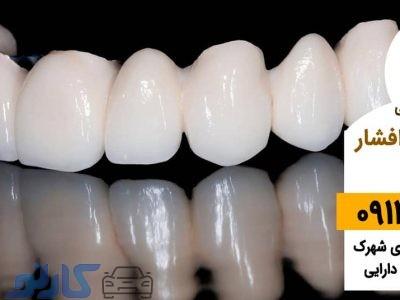هزینه و قیمت روکش دندان در بابل ، بابلسر   دکتر نیما افشار