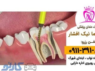عصب کشی و نمونه برداری دندان در بابل ،  بابلسر   دکتر نیما افشار