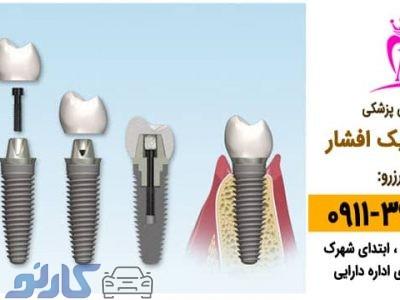 بهترین دندان پزشک کاشت دندان و ایمپلنت در بابل ، بابلسر   دکتر نیما افشار