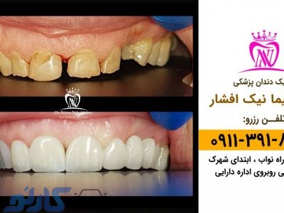 بهترین  دندان پزشک زیبایی و کامپوزیت ونیر در بابل ، بابلسر   دکتر نیما افشار